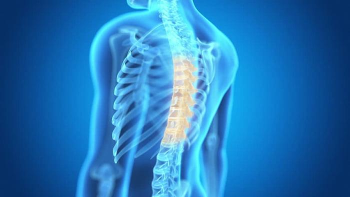 osteoporoza poza